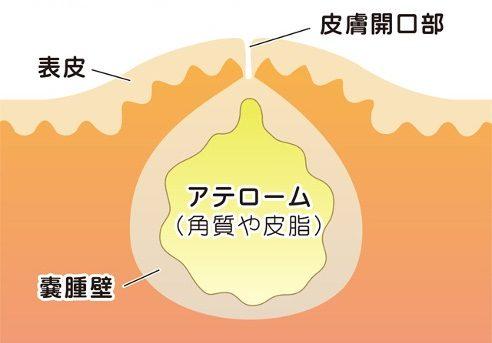 粉瘤・アテローム