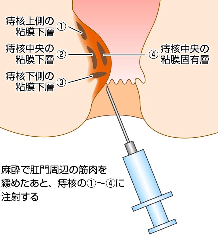 ジオン注(ALTA療法) 仙北市角館町で痔の手術は、下新町クリニック